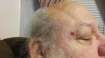 Mole removed.jpg